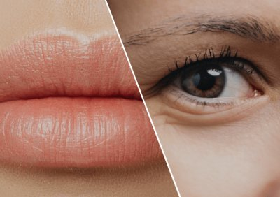 Benefits Of Lip Fillers