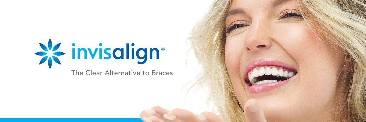 Best Cosmetic Dentistry That Offers Affordable Invisalign San Diego Prices