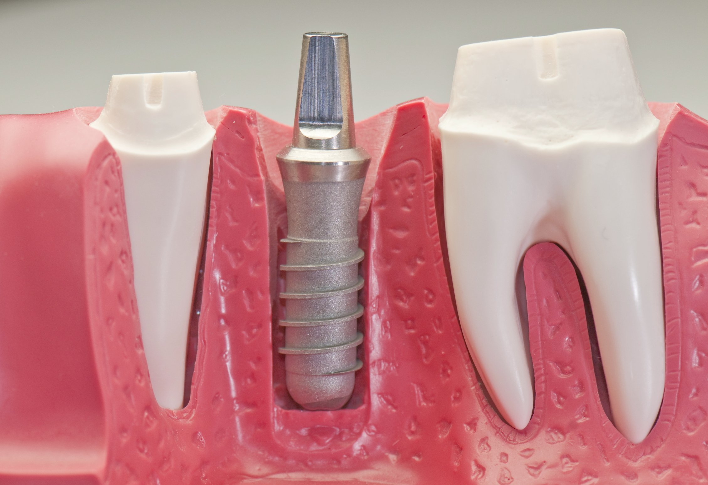 Best Family Dentists And Dental Implants Gainesville, FL