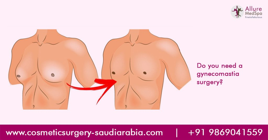 Gynecomastia Surgery – Don't Fear It
