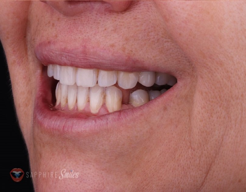 How Much Does A Dentist Take Charges For Dental Veneers?
