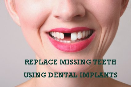 How To Replace Your Missing Teeth Using Dental Implants?