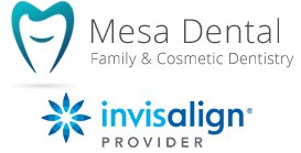 Invisalign Consultation In San Diego –your Smile Can Be Your Best Asset