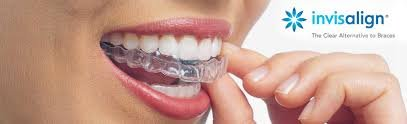 Invisible Braces San Diego- The Best Way To Align Your Teeth