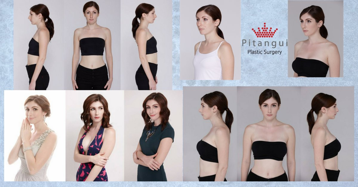 Plastic Surgery Clinic Korea: Providing Liposuction Services