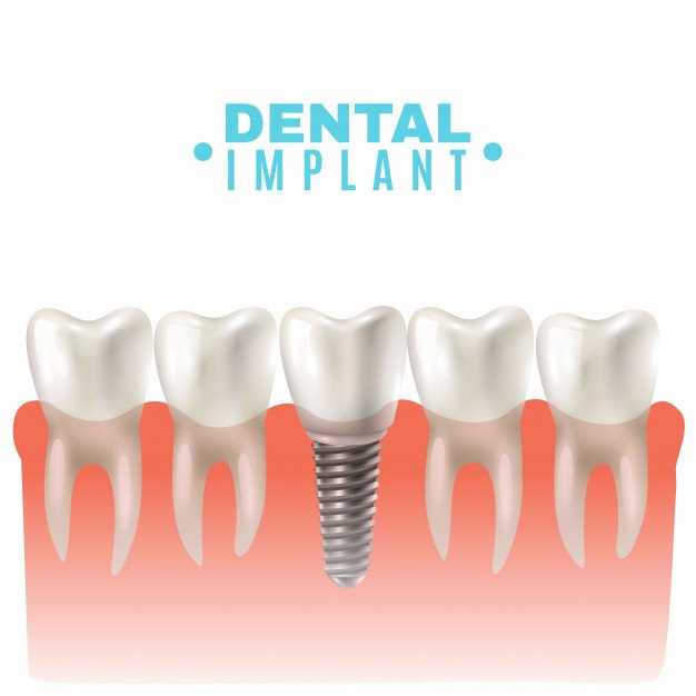 Reasons To Check Out Tooth Implants San Diego