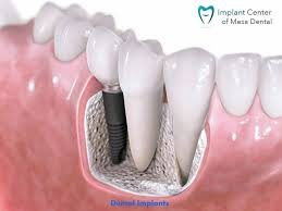 Reasons To Choose Implant Dentist San Diego CA & How Dental Implants Can Help You?