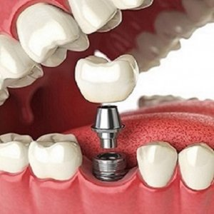 Know The Best Cosmetic Dental Services Provided By A Dentists
