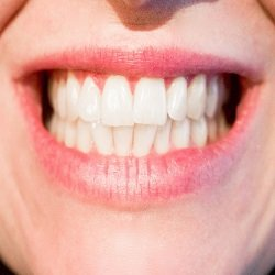 Tricks Recommended By Dentist For Healthy Teeth